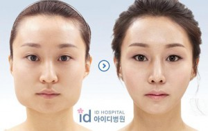 korean-plastic-surgery-jaw-95200776352